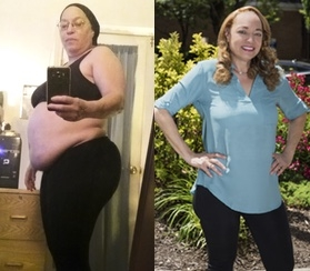 Diana Walton, before and after bariatric surgery at TBHC